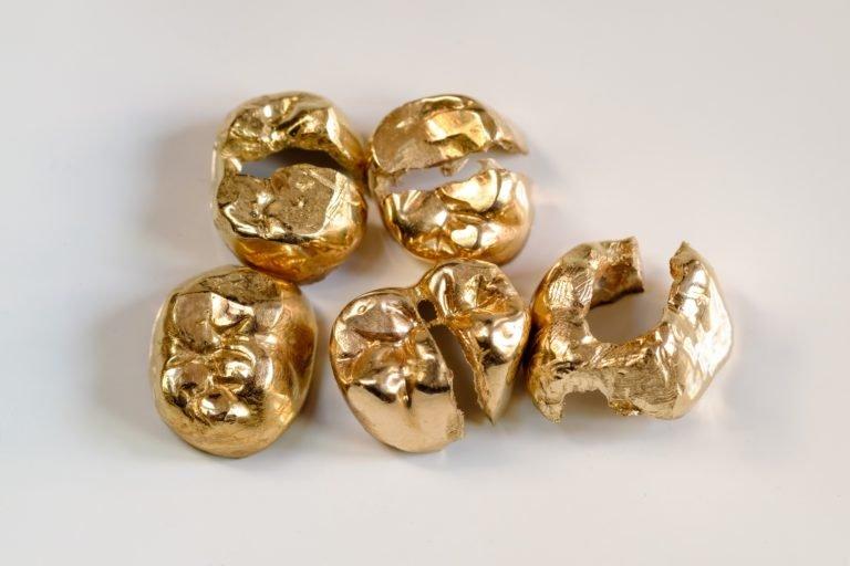 Gold-Recycling: Aufgeflexte Gold-Kronen (Zahngold)